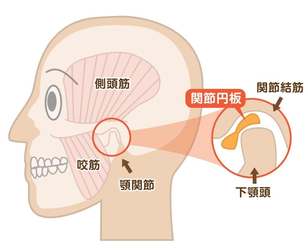 痛 治療 症 関節 額